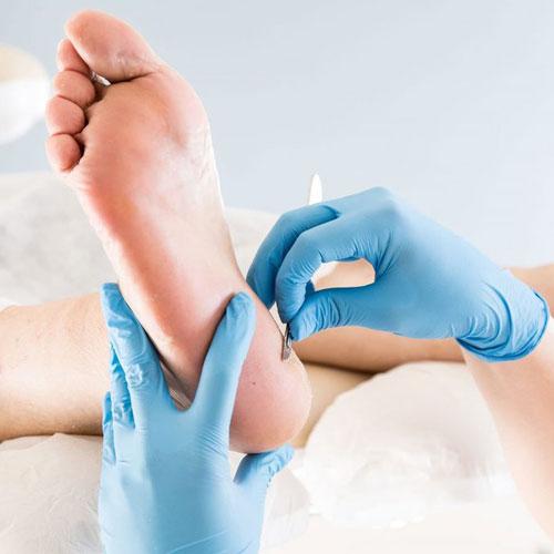 Dermatología del pie | Clínica Poyatos